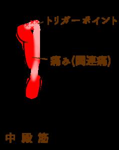 trigger_point_3